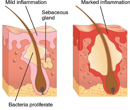 What causes Hidradenitis Suppurativa